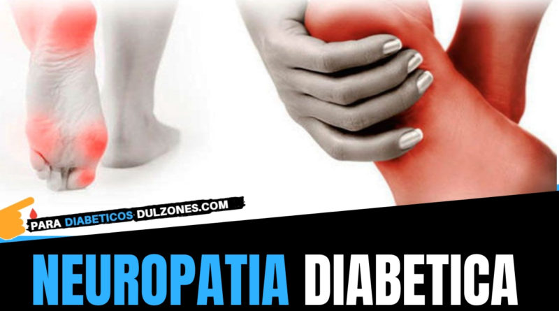que provoca la neuropatia diabetica