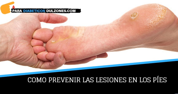 prevenir el pie diabetico